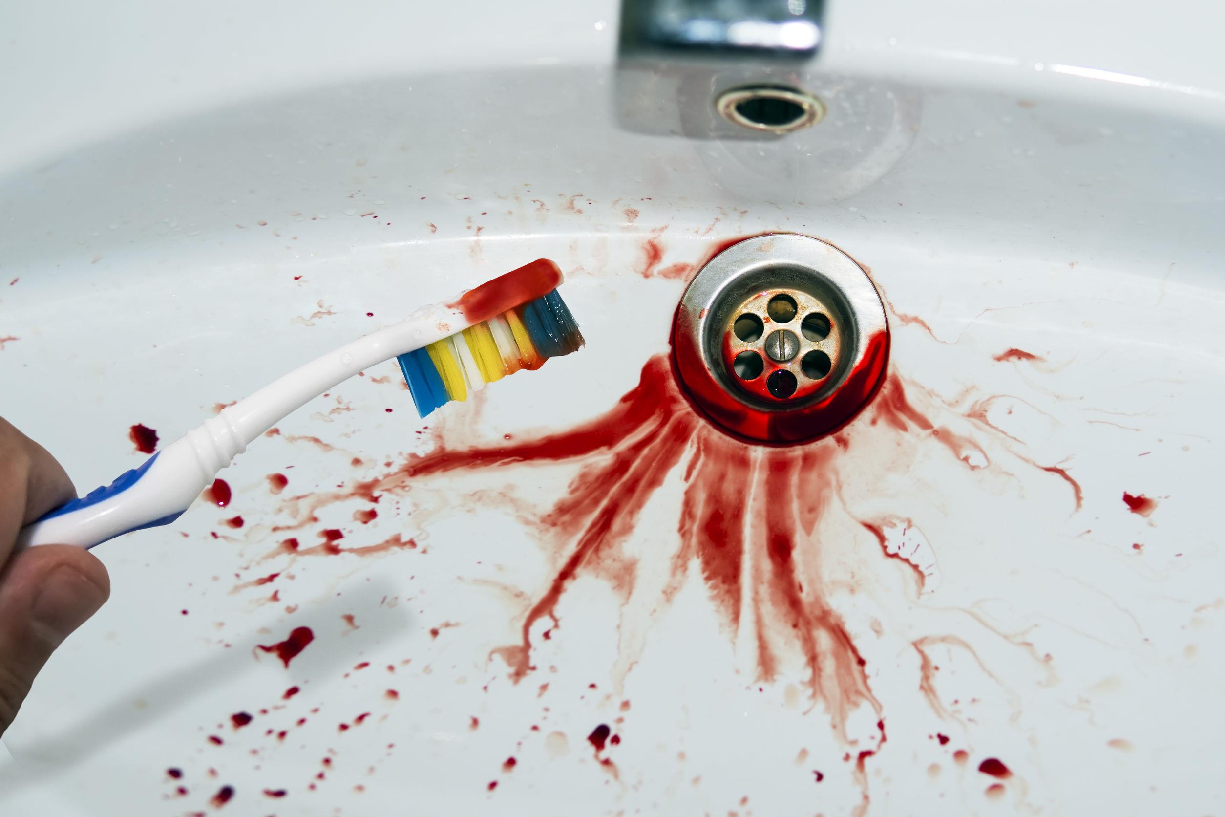 Brossage des dents trop dur fait saigner les dents