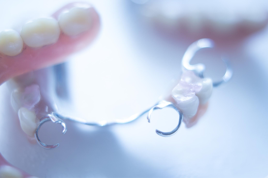 bridges dentaire
